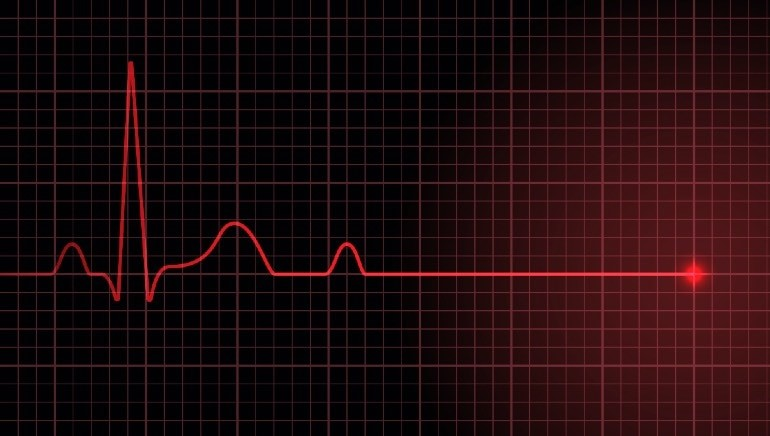 Women are more likely to succumb to night-time cardiac arrest: Study