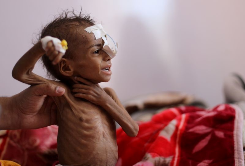 At least 400,000 Yemeni children under the age of five could starve this year: the UN